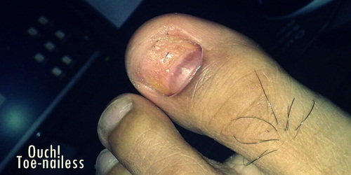 The Futsal Injury